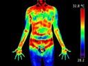 O uso da termografia infravermelha na avaliação do retorno ao trabalho em programa de reabilitação ampliado (PRA)